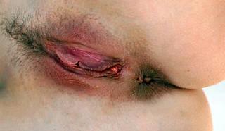 Fotos nuas da vagina.
